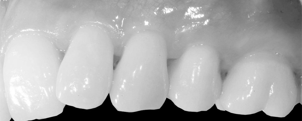 gingival graft by Sylvain Mouraret, Periodontist at Nice